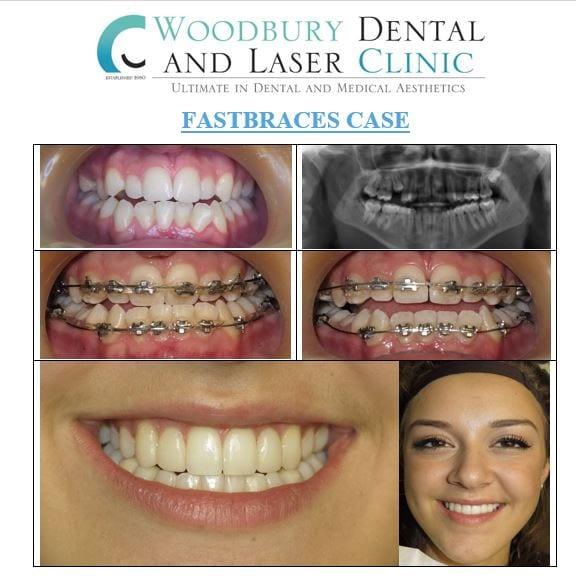 fast braces case