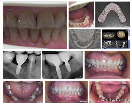 3 implant case