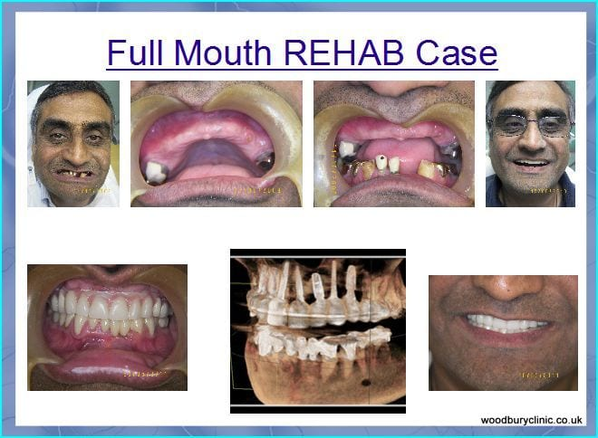 Full mouth rehab case just completed