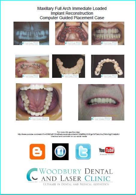 maxillary arch implant case
