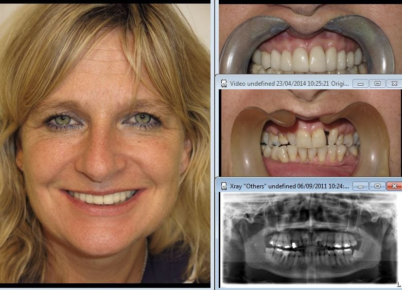 smile+fastbraces+cerec