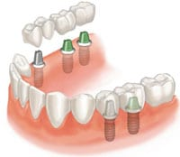 http://woodburydentalimplants.co.uk/